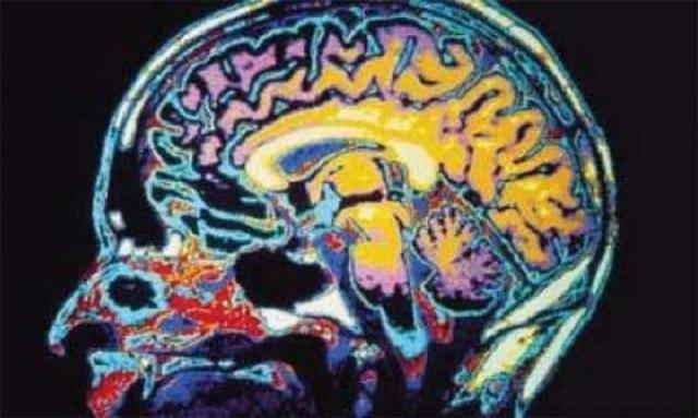 VA announces alternative treatments for PTSD, TBI